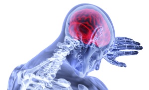 Brain & Head Injury Attorney & Lawyer in Los Angeles, Ca